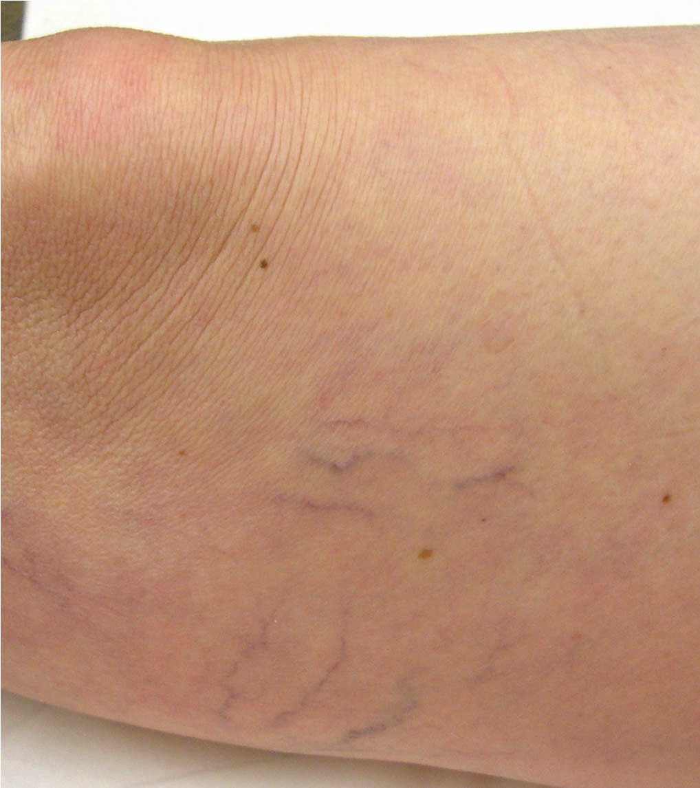 Vein before